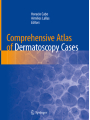 9783319769318 - Editor: Horacio Cabo, Editor: Aimilios Lallas: Comprehensive Atlas of Dermatoscopy Cases
